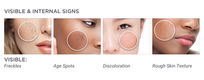 The visible signs of pigmentation.